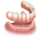 Denture Full Removal